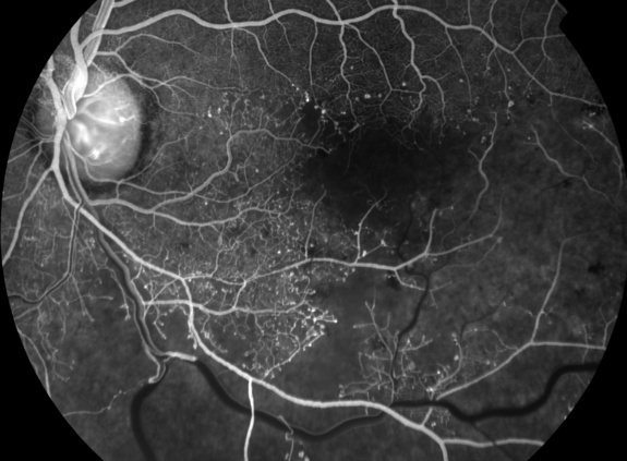 Branch Retinal Vein Occlusion - Ischemic - The Retina ...