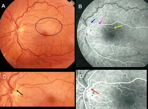 Cilioretinal Artery Insufficiency in Central Retinal Vein ...