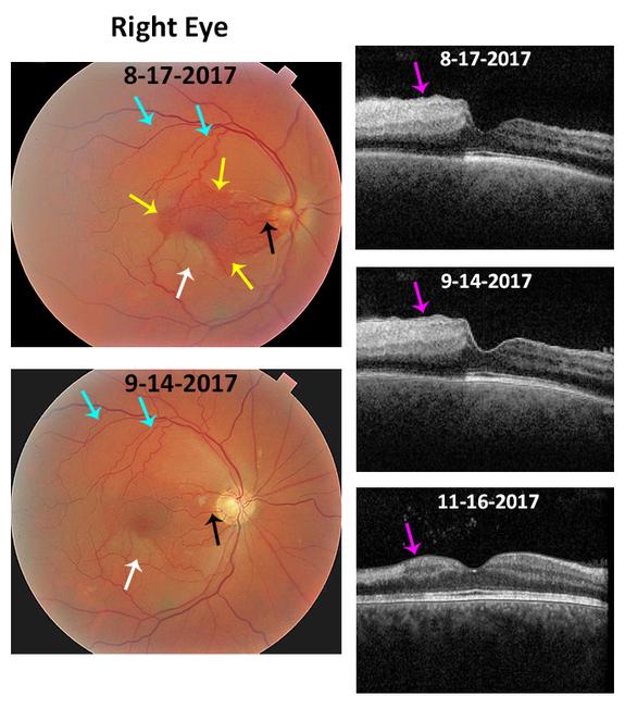 Central Retinal Artery Occlusion - Cilioretinal Artery ...